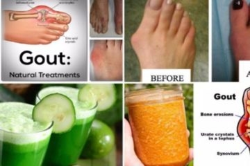 Doctor Confirmed: Say Goodbye to Arthritis with this Ultimate Remedy