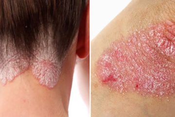 How to Detoxify & Get Rid of Psoriasis once & for All