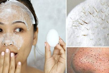 Natural Remedy for Removing Blackheads, Acne & Facial Hair without Pain