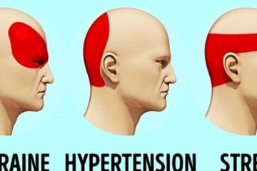How to Get Rid of Headaches without Pills