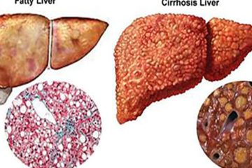 Top 7 Herbs to Cure Your Liver