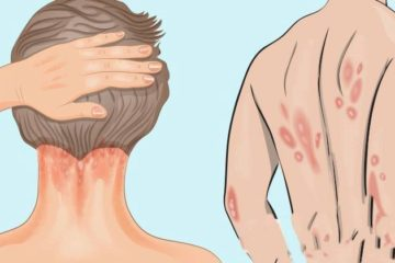 Psoriasis: Causes, Symptoms & the Vitamin You Are Missing