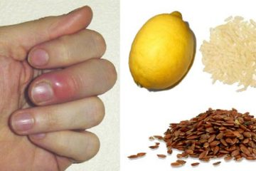 5 Effective & Easy Ways to Treat Finger & Toe Whitlow