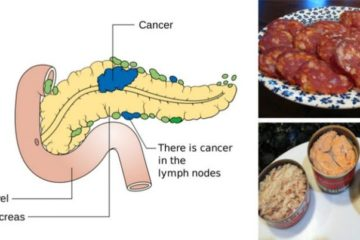 10 Foods Linked with Cancer You Should Never Eat Again