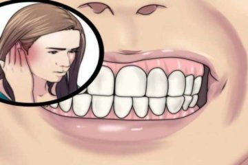 How to Recognize & Treat Toxic Tooth Infection before Heading to the Dentist's