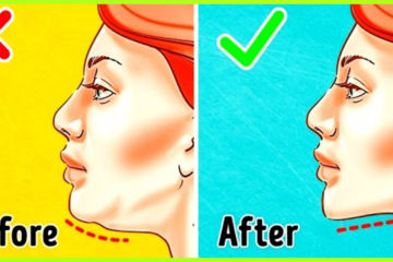 How to Get Rid of Double Chin: 5 Amazing Remedies