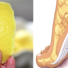 Did You Know? Lemon Peels May Eliminate Joint Ache for Good