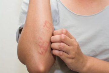 7 Major Eczema Causes that Doctors never Treat