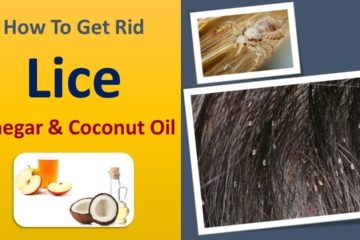 Your Child Has Lice? Use this all-Natural Potent Remedy to Destroy them fast