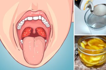 Caught a Strep Throat Infection? Try Out these 5 Natural DIY Remedies