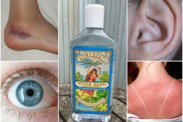 10 Surprising Uses for Witch Hazel You never Thought of