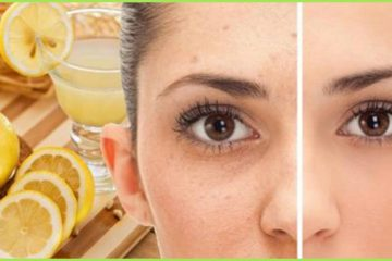 Remove Freckles & Brown Spots with this Amazing DIY All-Natural Remedy