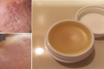 Unique DIY Scar Removal Cream: Removes Scars Long-Term within 2 Weeks