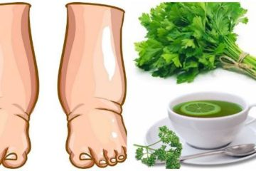 Your Legs Are Swollen? Drink this Potent DIY Tea to Cure Them