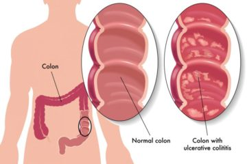 Early Cancer Detection Saves Lives: the 5 Major Symptoms of Colon Cancer