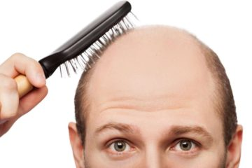 If You Want to Stop Hair Loss, Try these Effective Natural Remedies