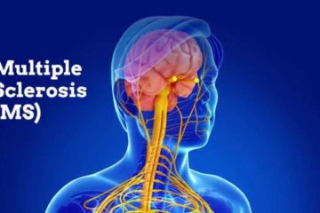 Alleviate Multiple Sclerosis Symptoms with these 5 Natural Remedies
