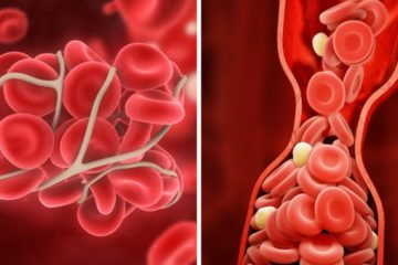 10 Useful Tips to Help Avert Blood Clots & Preserve Your Health