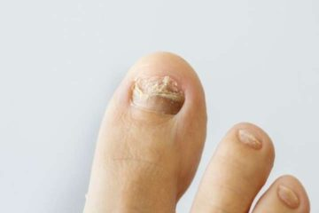 Gross Video Showing what Happens when Fungal Toenail Infection Is Untreated for a Year