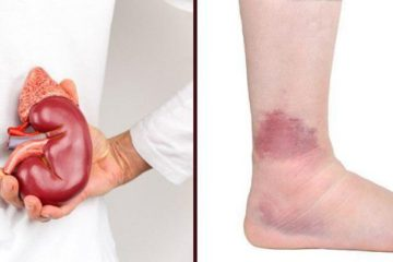 Don't Ignore these 20 Symptoms of Chronic Kidney Disease