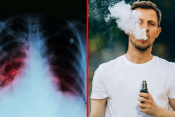 CDC Warns against Vaping after Spike in Lung Disease