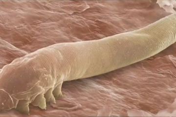 You Have Mites on Your Eyelashes & You Don't even Know It, Scientists Say