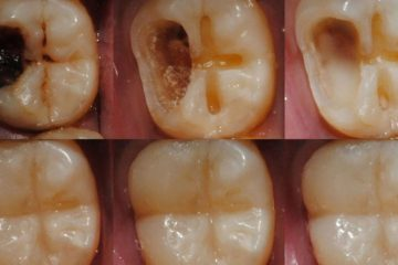 Scientists Work on Developing a Hydrogel for Tooth Enamel Regeneration