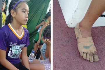 11-Year-Old Girl Wins Gold Medals Wearing 'Shoes' Made from Bandages